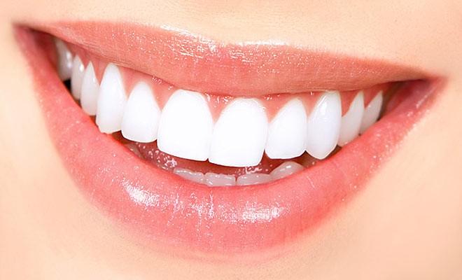 Diş çürüklerinin ilaçla tedavisi mümkün olacak