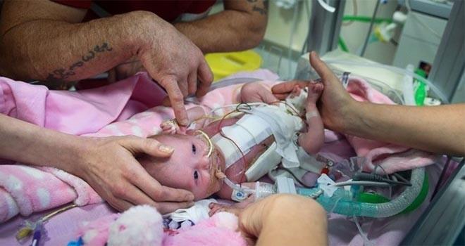 Kalbi dışarıda doğan bebeğin kalbi 3 ameliyatla yerine kondu