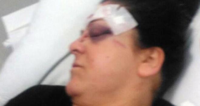 Eşine sokakta tornavida ile saldırdı