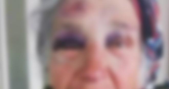 84 yaşındaki kadın bakıcısı tarafından darp edildi