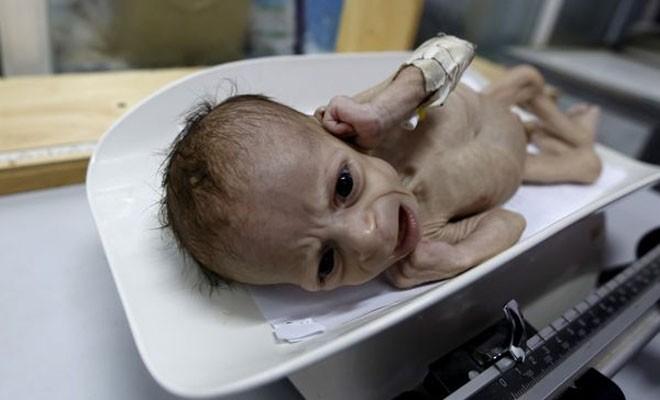 Yemen, çocuklar için cehenneme döndü
