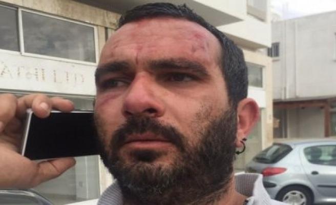 Karapaşa'ya saldırdığı iddia edilen diğer Kıbrıslı Rum da gözaltında