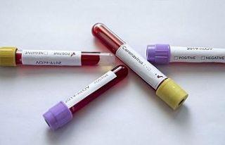 İran'da Sağlık Bakan Yardımcısı koronavirüse...