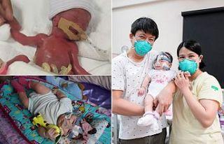 'Dünyanın en küçük bebeği' 13 aylık...