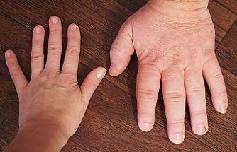 El ve ayak büyümesinin sebebi akromegali hastalığı olabilir