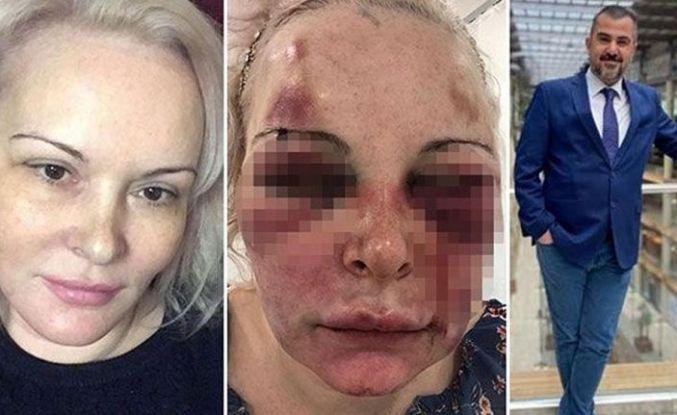 Sosyal medyadan tanıştı, otel odasında dehşeti yaşadı
